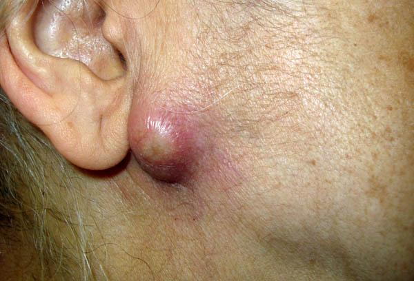 Son ya 70 los casos de tularemia confirmados en Palencia.