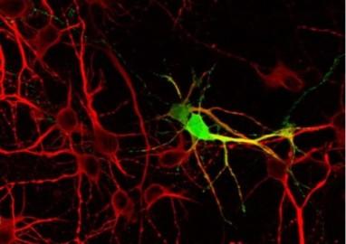 neuronas en cultivo dicyt