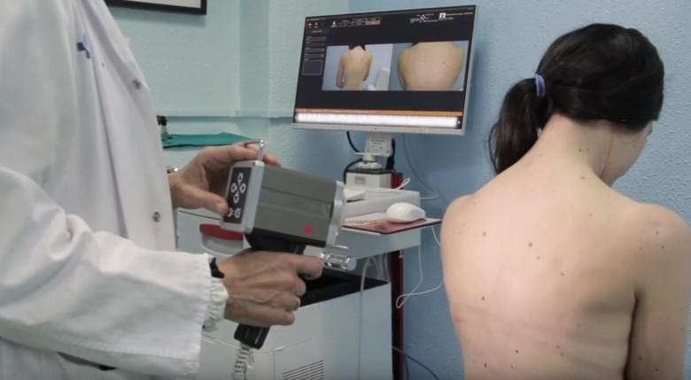 El análisis de lunares del servicio de Dermatología del Hospital Universitario de Salamanca