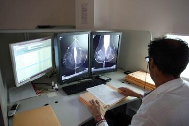 ICAL. Estudio de una mamografía digital.