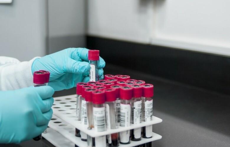 laboratorio sangres leucemia analisis investigacion pixabay
